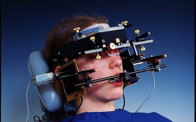 あごの動きを調べる検査