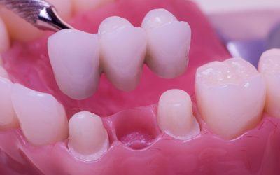 歯が足りない部位にブリッジ