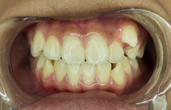 左側の八重歯