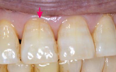 前歯のヒビ