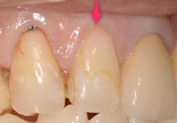 変色した歯の充電物