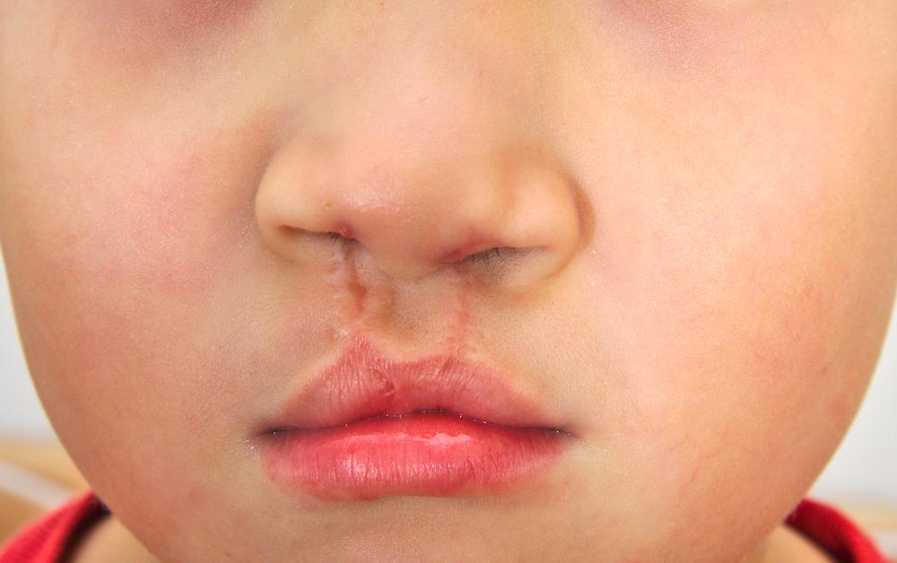 口唇口蓋裂