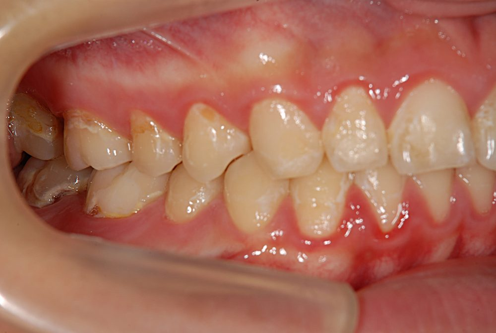 矯正治療後の虫歯