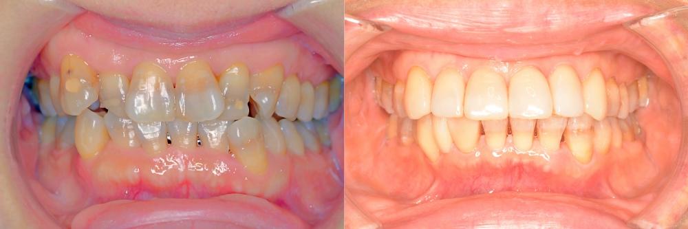 矯正後の前歯の補綴治療