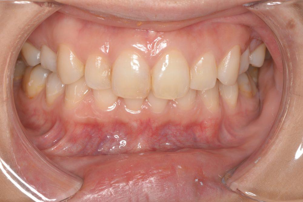 抜歯矯正が引き起こす深すぎる噛み合わせ