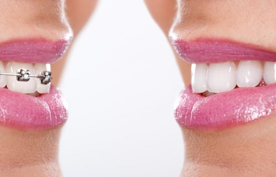 歯列矯正の治療期間