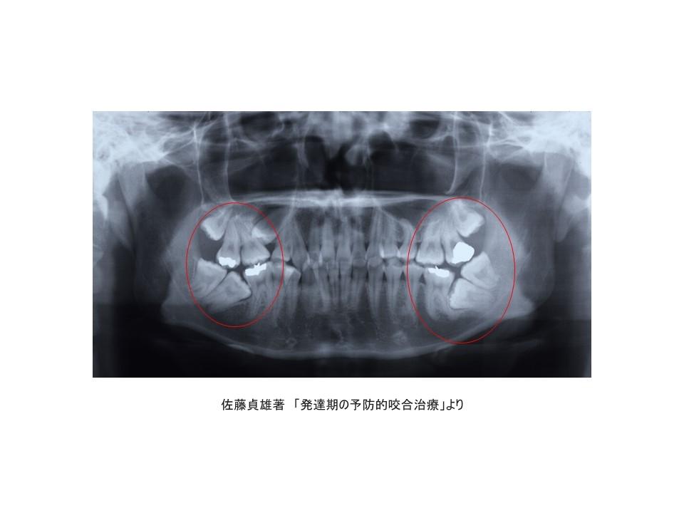 大人の歯のエックス線写真