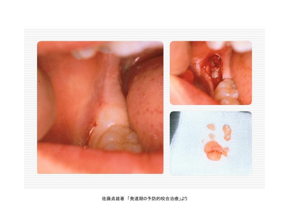 親知らずの早期抜歯